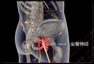 蒙古黑药丹神抗骨质增生丸治疗腰椎增生